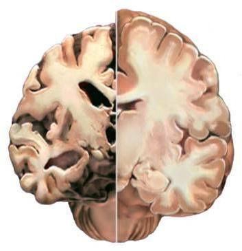 Изменения в головном мозге. Причины развития, диагностика и лечение сосудистого генеза
