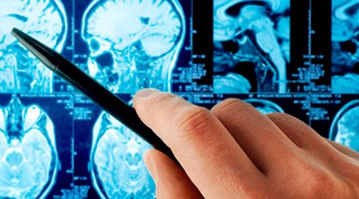 Что ощущает человек во время инсульта: предвестники