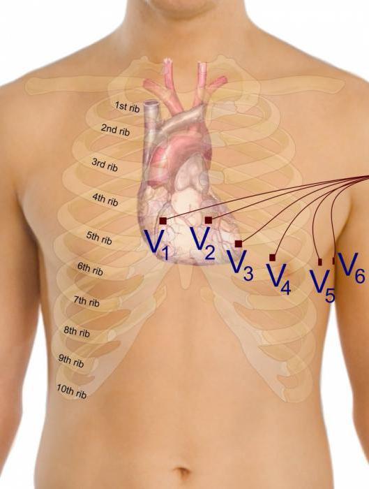 Снятие экг наложение электродов — Сердце