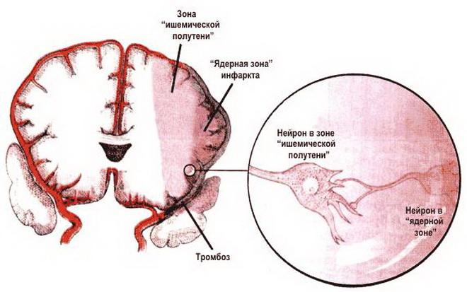 Что такое ишемия и почему она возникает