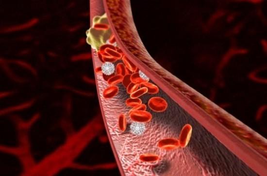 От чего образуется тромб в сердце
