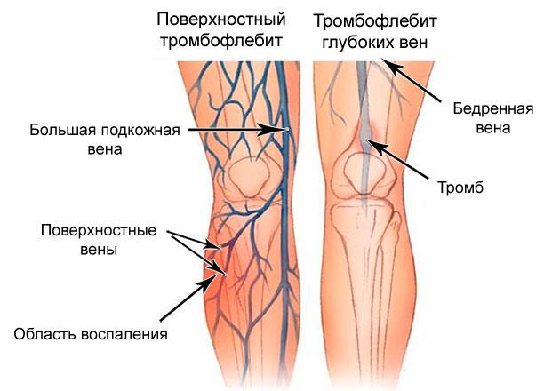 на ногах видны вены и капилляры